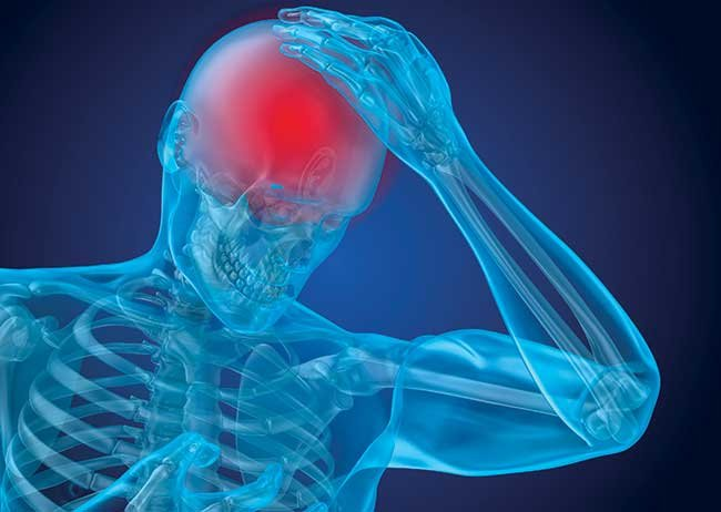 8 things you should know about concussion