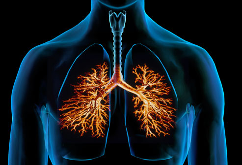 Bronchitis: What to Know