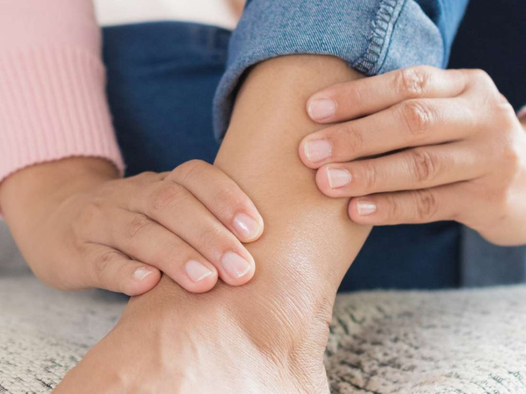 The Causes of Ankle Swelling