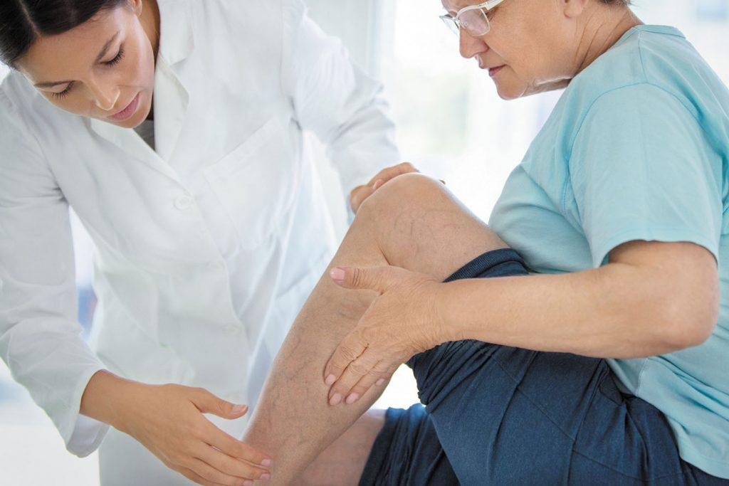 Deep Vein Thrombosis: Symptoms, Causes, Treatment And Prevention
