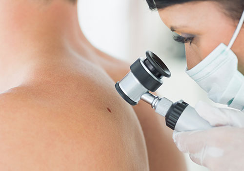 7 Helpful advice on how Skin Cancer can be Prevented