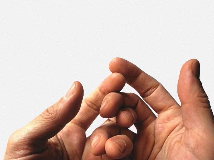 The Various Causes and Treatment Options Available for Hand Pain