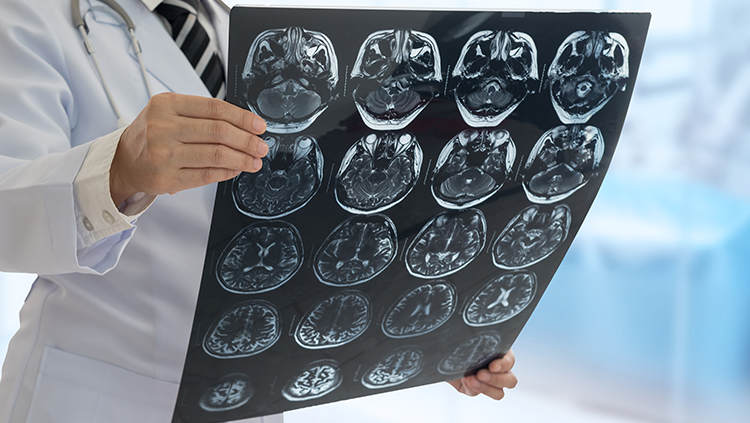 Managing your Neurological Condition Despite the Pandemic