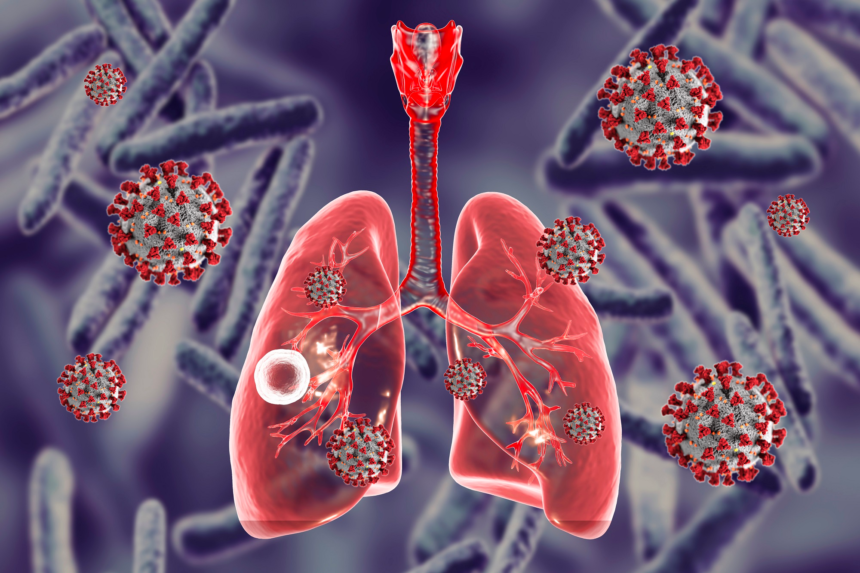 5 Misbelief People Have About Tuberculosis
